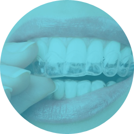 Common questions about Invisalign