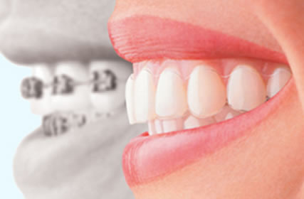 Invisalign treatment 1