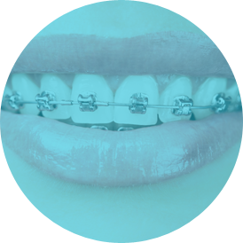 Common questions about orthodontics