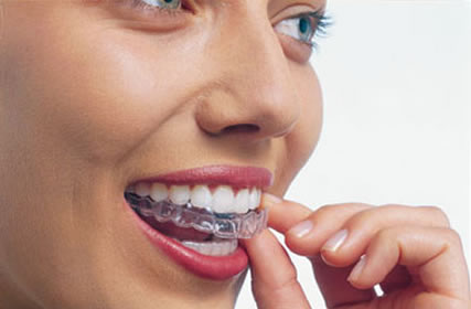 Invisalign treatment 2